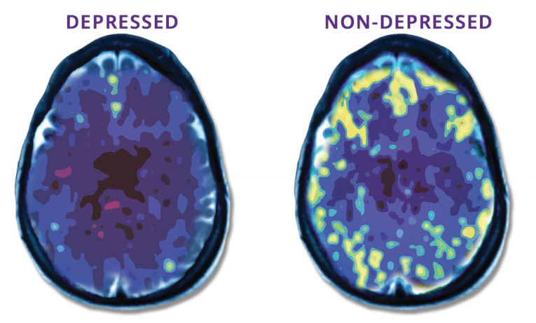 PET Scan - Depressed and Non-Depressed Brain